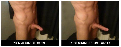 Photo du pénis avant et après une cure xtrasize
